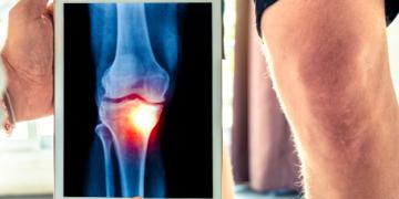 Cómo tratar la condromalacia rotuliana y fortalecer la rodilla.